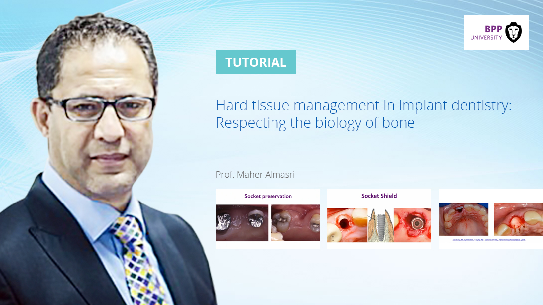 Hard-tissue-management-in-implant-dentistry-Respecting-the-biology-of-bone