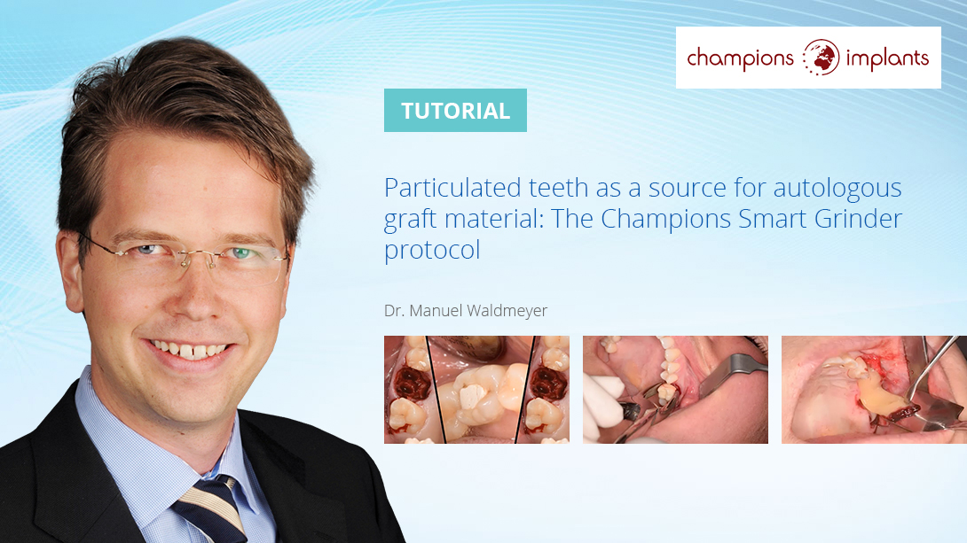 Particulated-teeth-as-a-source-for-autologous-graft-material--The-Champions-Smart-Grinder-protocol--Promo-Banner-Template