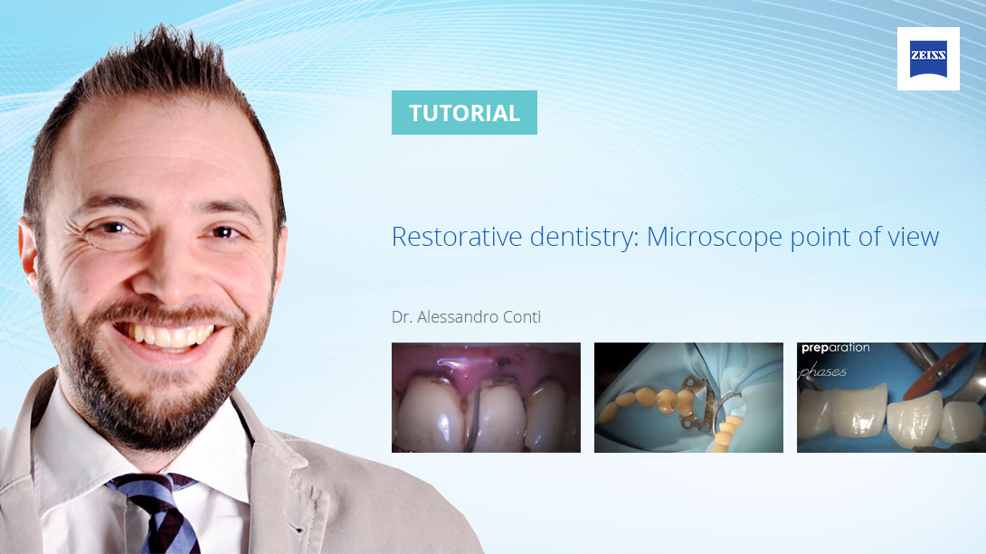 Restorative-dentistry-Microscope-point-of-view