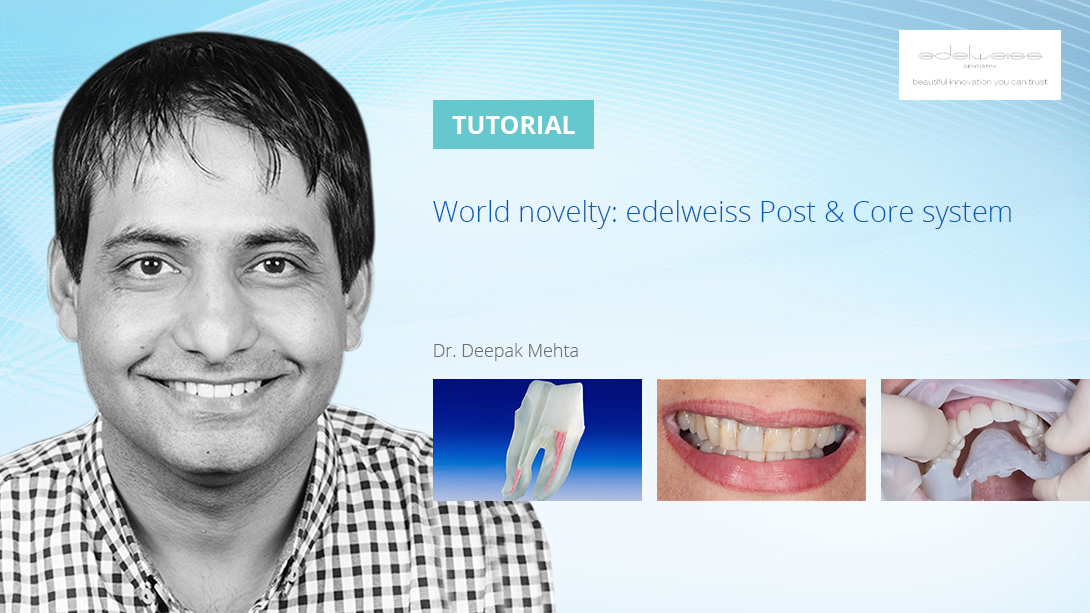 World-novelty--edelweiss-Post-&-Core-system--Promo-Banner-Template