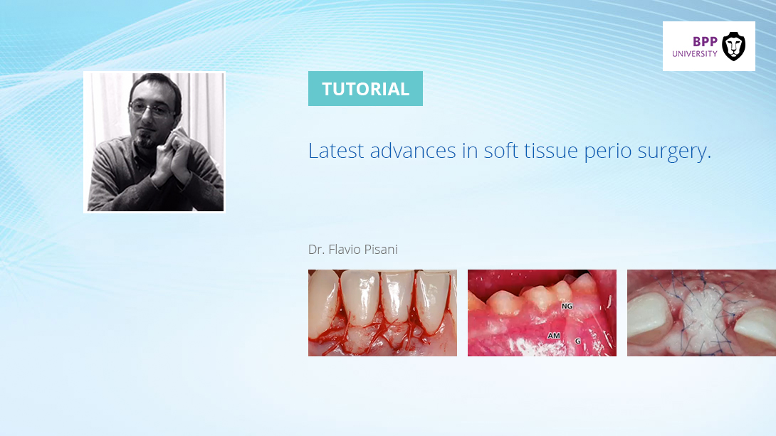 latest-advances-in-soft-tissue-perio-surgery