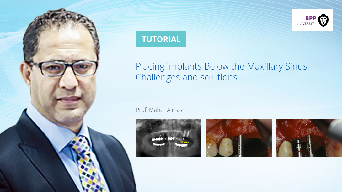 placing-implants-below-the-maxillary-sinus-challenges-and-solutions